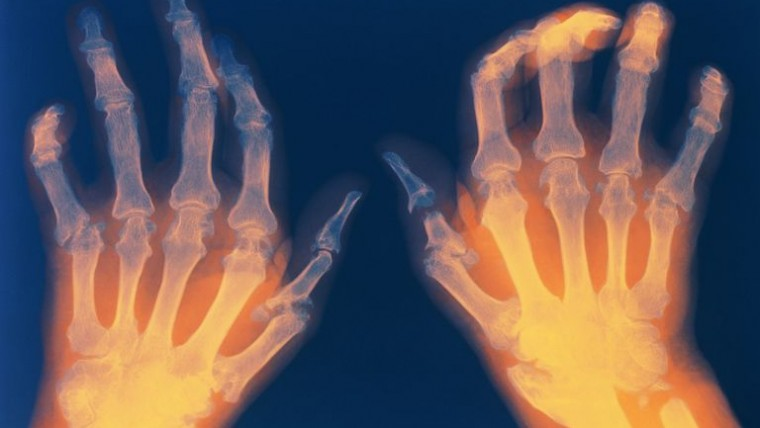 ARTHRITIS CORRECTION